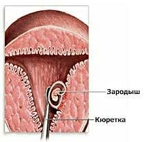 Аборт хирургический - выскабливание
